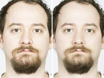 Hombre con la piel manchada con los poros y espinilla profundos y curada Fotos de archivo