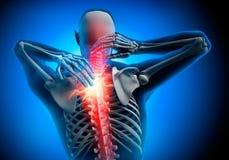 Hombre con síntomas fuertes del dolor en cuello stock de ilustración