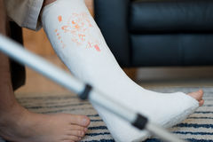 Hombre con un yeso de la pierna Imagen de archivo libre de regalías