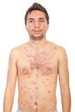 Hombre con varicela Foto de archivo