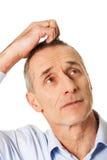 Hombre confuso que rasguña su cabeza Imagen de archivo