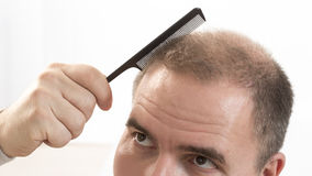 Hombre de mediana edad referido por cierre de la alopecia de la calvicie de la pérdida de pelo encima del fondo blanco Foto de archivo libre de regalías