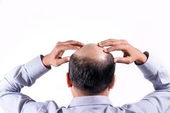 Hombre de negocios calvo con su cabeza en la opinión del cuero cabelludo de detrás con el wh imagen de archivo