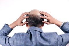 Hombre de negocios calvo con su cabeza en la opinión del cuero cabelludo de detrás con el wh fotos de archivo libres de regalías