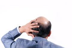 Hombre de negocios calvo con su cabeza en la opinión del cuero cabelludo de detrás con el wh imagenes de archivo