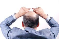 Hombre de negocios calvo con su cabeza en la opinión del cuero cabelludo de detrás con el wh foto de archivo