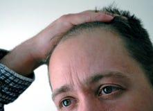 Hombre de negocios de Dissapointed foto de archivo libre de regalías