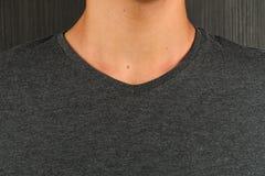 Hombre joven caucásico en camiseta gris con un lunar en su cuello Imágenes de archivo libres de regalías