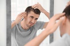 Hombre joven con el problema de la pérdida de pelo que mira en espejo fotografía de archivo