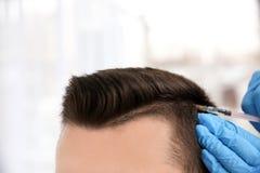 Hombre joven con el problema de la pérdida de pelo que recibe la inyección foto de archivo libre de regalías