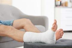 Hombre joven con la pierna quebrada en el molde que se sienta en el sofá fotos de archivo