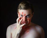 Hombre joven con sangre en su cara Imagenes de archivo