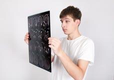 Hombre joven con tomografía Foto de archivo libre de regalías