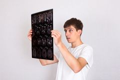 Hombre joven con una tomografía Fotografía de archivo libre de regalías