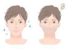 Hombre joven de la barba del rastrojo antes y después de afeitar Foto de archivo libre de regalías