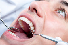 Hombre joven que blanquea los dientes en el dentista Fotos de archivo libres de regalías