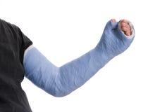Hombre joven que lleva un molde largo azul de la fibra de vidrio del yeso del brazo Imagen de archivo