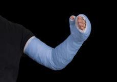 Hombre joven que lleva un molde largo azul de la fibra de vidrio del yeso del brazo Fotos de archivo libres de regalías