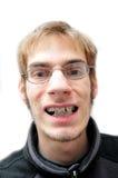 Hombre joven que sonríe con las paréntesis Fotografía de archivo
