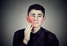 Hombre joven triste con un dolor de muelas Fotos de archivo libres de regalías