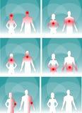 Hombre médico y mujer, dolor del cuerpo humano Imágenes de archivo libres de regalías