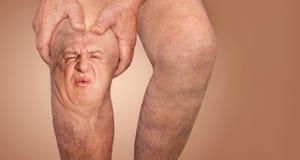 Hombre mayor que sostiene la rodilla con dolor collage Concepto de dolor y de desesperaci?n abstractos fotos de archivo libres de regalías