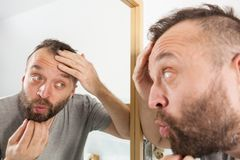 Hombre preocupante que mira su rayita de disminuci?n imágenes de archivo libres de regalías