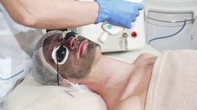 Hombre que consigue la peladura facial del carbono en la clínica de la belleza del cosmetologist profesional almacen de video
