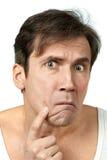Hombre que exprime una espinilla Imagenes de archivo