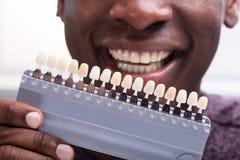 Hombre que hace juego las sombras de los dientes fotos de archivo