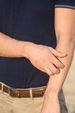 Hombre que tiene una alergia de la piel Imagenes de archivo