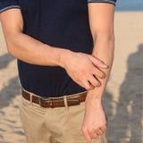 Hombre que tiene una alergia del sol Foto de archivo libre de regalías
