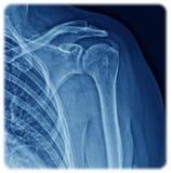 Hombro de la radiografía Imagenes de archivo