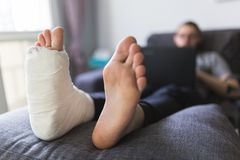 Home convalescence after breaking the right leg. Convalescence after breaking the leg at home royalty free stock photography