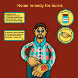Home remedy for burns. The information poster describing first aid at a slight burn of a surface of skin. Alternative medicine. Apiotherapy. Beekeeping Stock Images