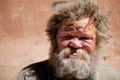 Homeless life. Hobo with gore, selective focus on face, made on Canon 5D mark two Stock Photography