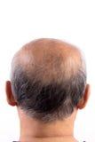 Homem calvo da queda de cabelo imagem de stock
