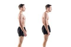 Homem com defeito danificado da posição da postura Fotos de Stock Royalty Free