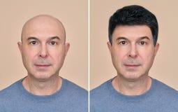 Homem com e sem o cabelo imagem de stock royalty free