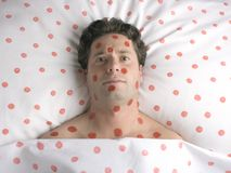 Homem com os pontos vermelhos na face e no corpo fotos de stock royalty free