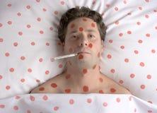 Homem com os pontos vermelhos na face e no corpo Fotografia de Stock