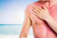 Homem com pele danificada do sol, queimadura fotos de stock
