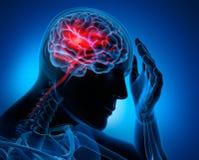 Homem com sintomas do curso do cérebro ilustração royalty free