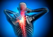 Homem com sintomas fortes da dor no pescoço ilustração stock