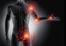 Homem com sintomas pesados da dor articular ilustração royalty free