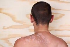 Homem com uma queimadura Foto de Stock Royalty Free