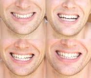 Homem da cara do sorriso com saúde dental da colagem branca natural dos dentes Imagens de Stock Royalty Free