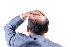 Homem de negócios calvo com sua cabeça na opinião do escalpe de trás com wh foto de stock
