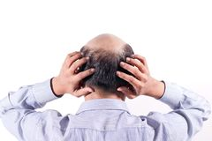 Homem de negócios calvo com sua cabeça na opinião do escalpe de trás com wh imagem de stock