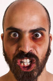 Homem engraçado com círculos escuros Fotografia de Stock Royalty Free